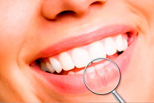 Impacto da Implantodontia na Odontologia e na vida das pessoas.