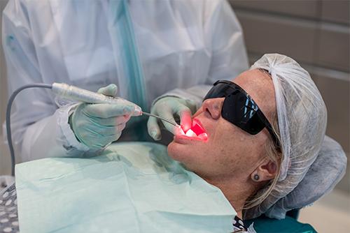 Hipersensibilidade Dentária x  Laserterapia na Odontologia