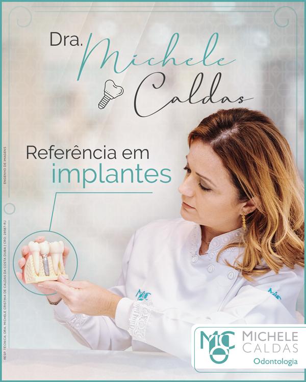 Dra. Michele Caldas: referência em implantes