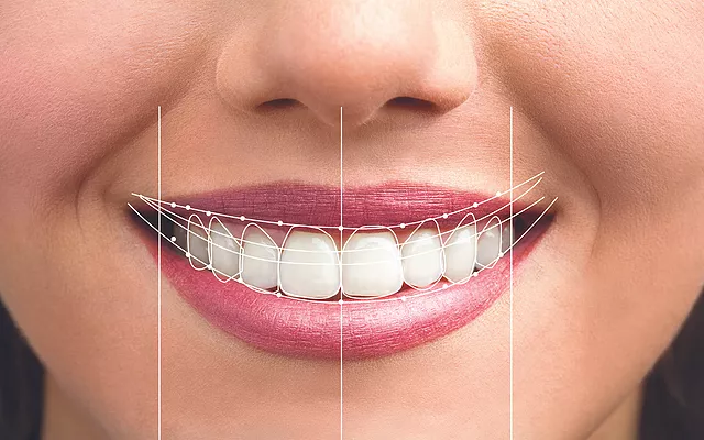 O que é o Digital Smile Design?