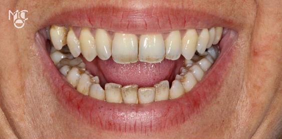 Por que os dentes escurecem com o tempo?
