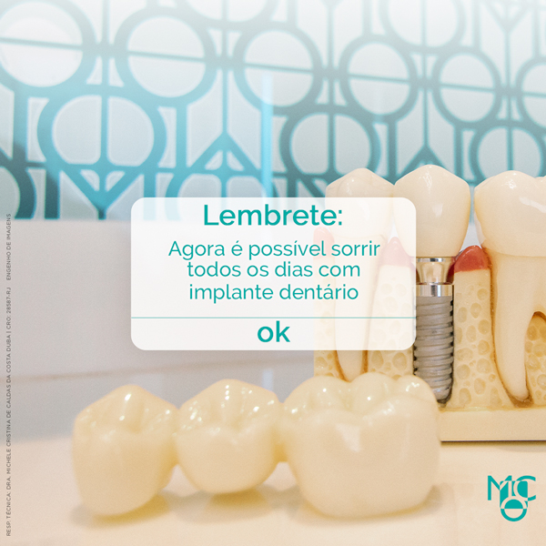 Lembrete: agora eu posso sorrir todos os dias com implante dentário!